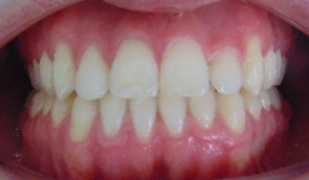 diasema cerrado con ortodoncia