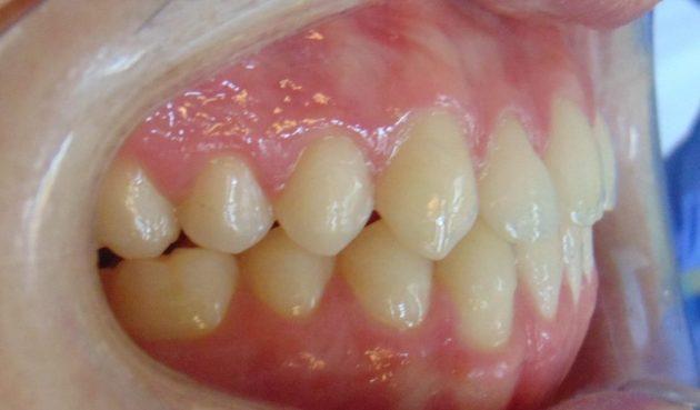después del tratamiento de ortodoncia Tenerife