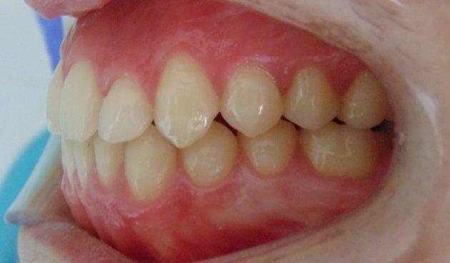 tratamiento ortodoncia puerto de la cruz