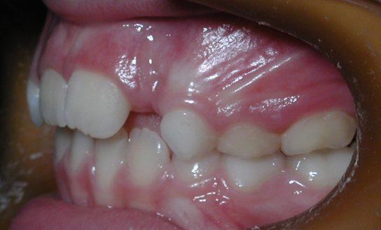 antes después del tratamiento de ortodoncia