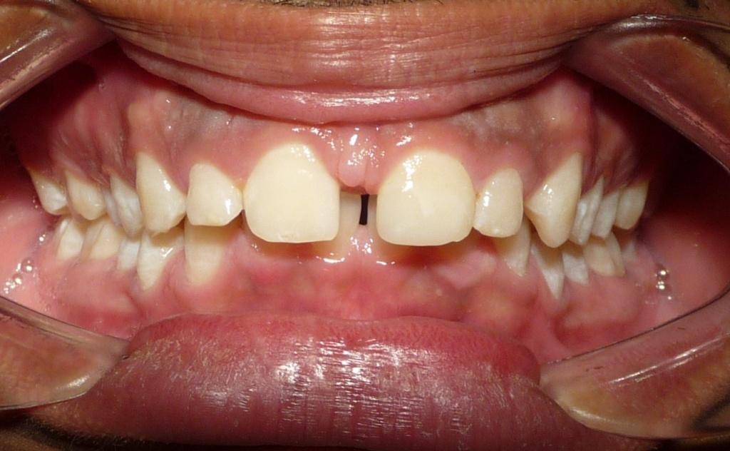 antes del tratamiento para cerrar diastema