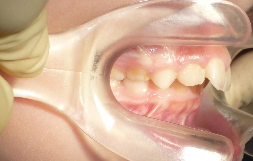 perfil ortopedia dental