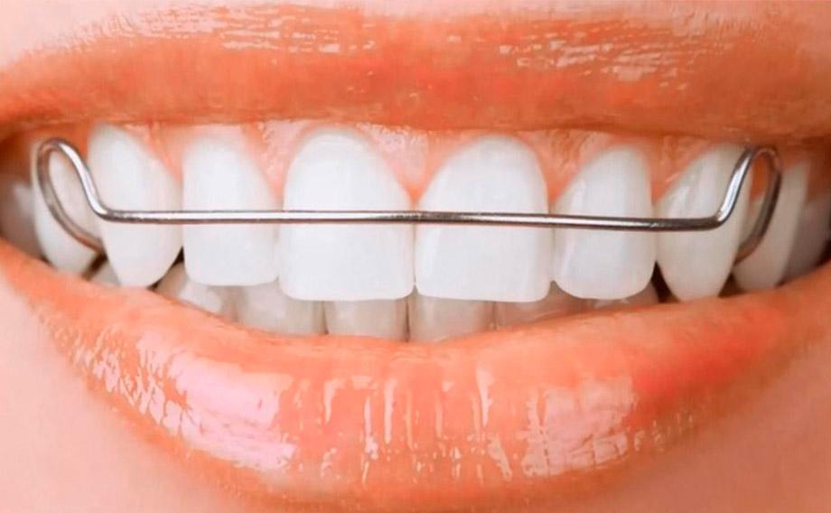 ortopedia maxilar tenerife