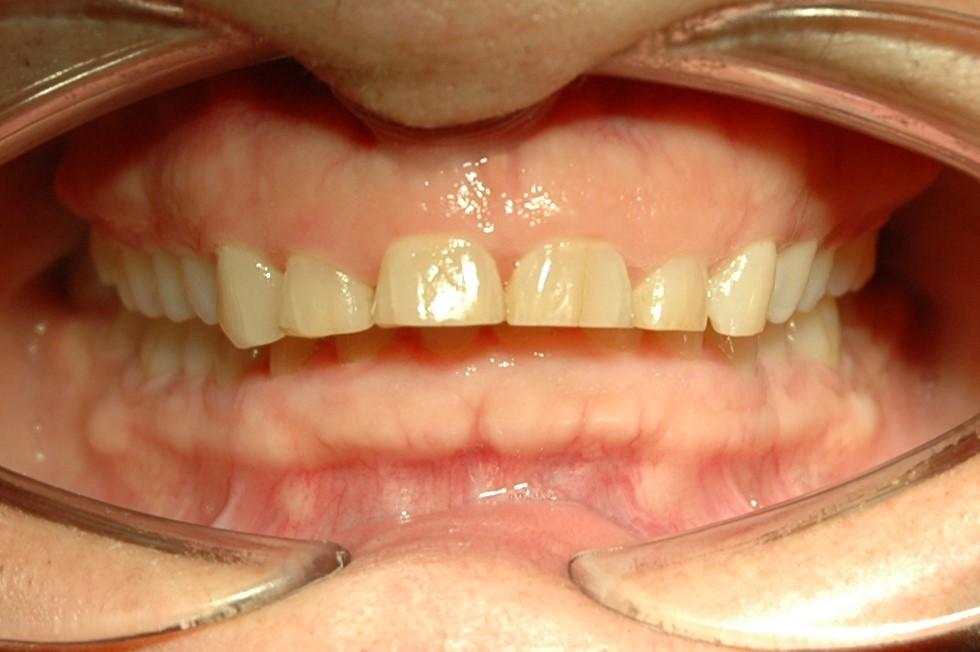 desgaste de los dientes de un bruxista