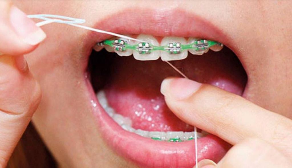usando el hilo o la seda dental