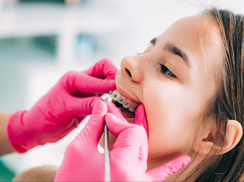 ortodoncia para niños en el Puerto de la Cruz. Ortodent
