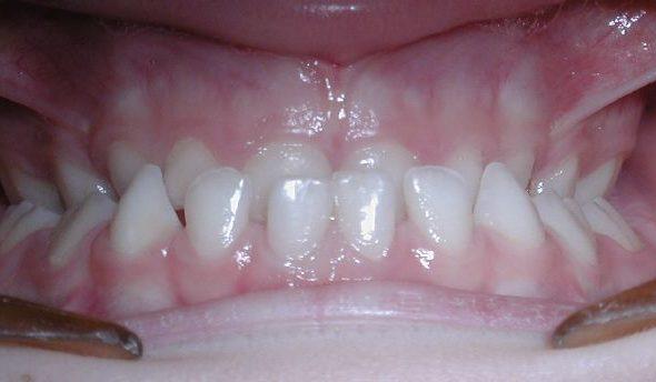 maloclusión dental ortodent