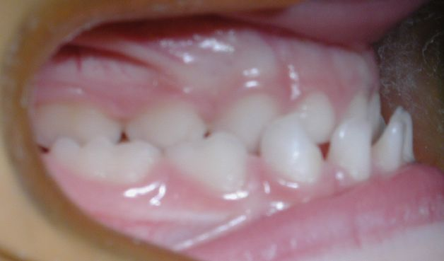 maloclusion dental ortodent