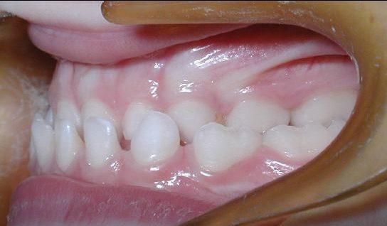 ejemplo de antes después del tratamiento de ortodoncia