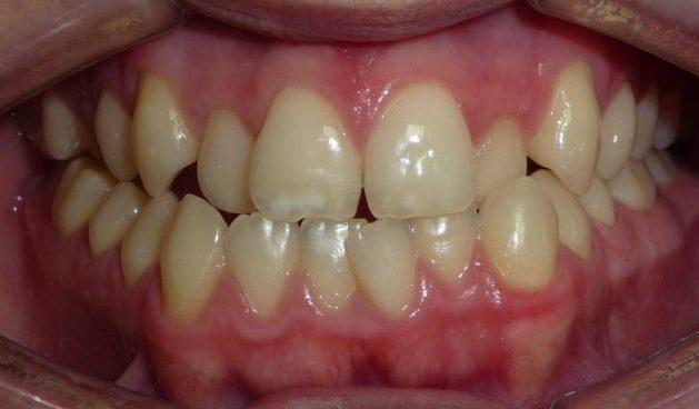 antes del tratamiento de ortodoncia