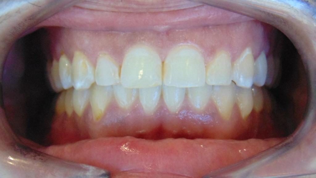 cierre diastema ortodoncia